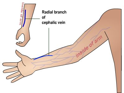 Arm Veins Diagram http://nursing.flinders.edu.au/students/studyaids/clinicalcommunication/activities_page.php?id=1106